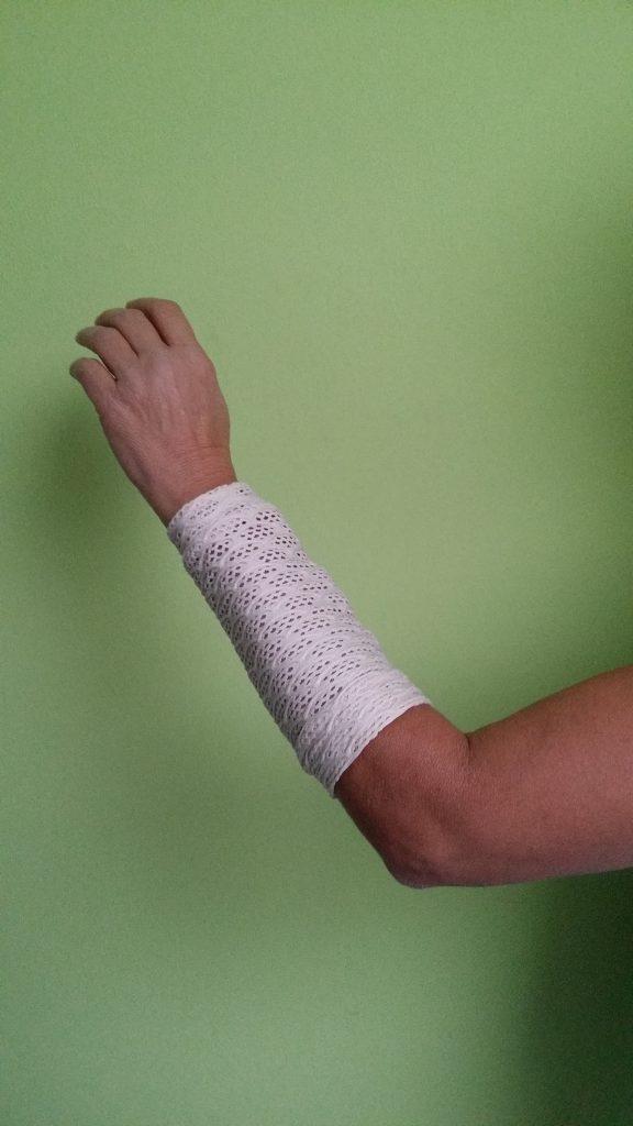 weiss-damen-Shuntschutzbänder-für-dialysepatienten-diazipp-dialysebekleidung-Kundenstimmen-Gabi