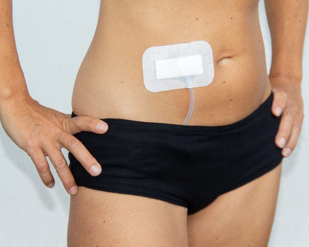 schwarz-Damen-PD-Panty-für-Dialysepatienten-Diazipp